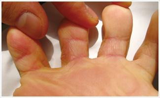 El ungüento para el tratamiento de los hongos en los pies